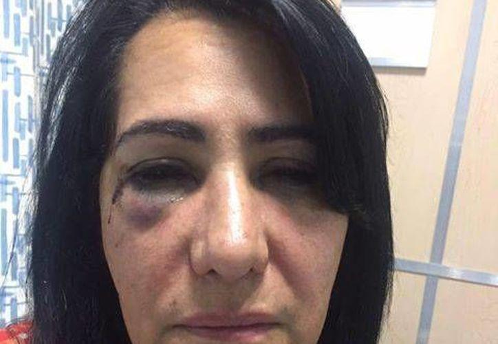 Rosa Margarita Ortiz Macias denunció, a través de un video, que fue violada cuando iba a bordo de un camión ETN con dirección a San Luis Potosí. (facebook.com/Adolfo-Micalco-Mendez)