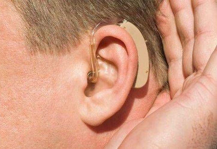 Los aparatos auditivos tienen un costo en el mercado de 40 mil a 50 mil pesos cada uno. (Cortesía)