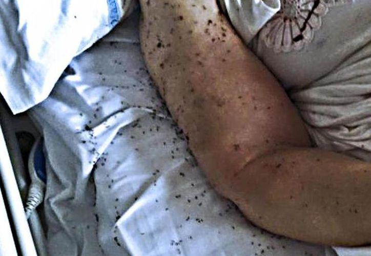 La foto del brazo lleno de hormigas de una mujer puso en evidencia la falta de sanidad de un hospital de Italia. (Milenio.com)