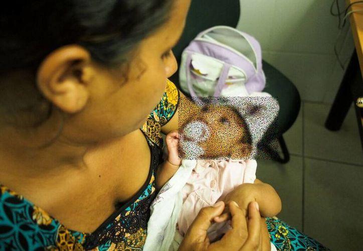 De acuerdo con el subsecretario de Prevención y Promoción de Salud, Pablo Kuri Morales, a ninguna mujer infectada con zika se le ha detectado que sus recién nacidos nazcan con microcefalia. (Notimex/Foto de contexto)