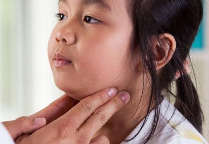 Las paperas es una enfermedad contagiosa que puede afectar clásicamente a niños y adolescentes. (Foto: Contexto)