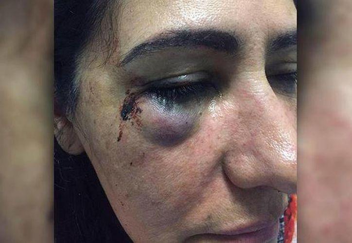 Margarita Ortiz dio a conocer los detalles de la agresión física y sexual que sufrió el pasado martes a bordo de una unidad de la línea de autobuses ETN. (Facebook Aristegui Noticias)