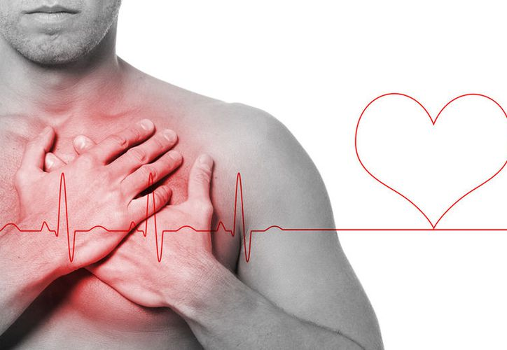Las arritmias son problemas de la frecuencia cardíaca o del ritmo de los latidos del corazón. (Urgente 24).