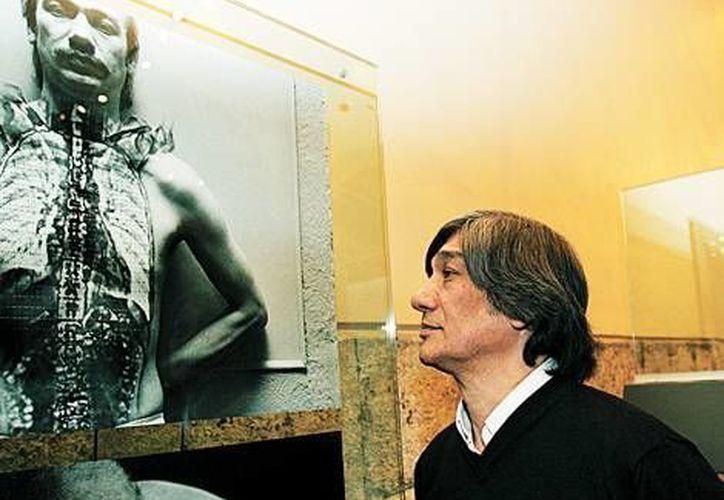 El trabajo fotográfico resultante de su lucha contra el cáncer ganó la sexta Bienal de Fotografía en 1993. (Milenio)