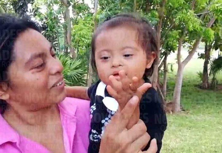 Itzayana tiene síndrome de Down; su mamá, Genny Beatriz Chi, se ha propuesto darle una vida llena de satisfacción y respeto. (Luis Soto/SIPSE)