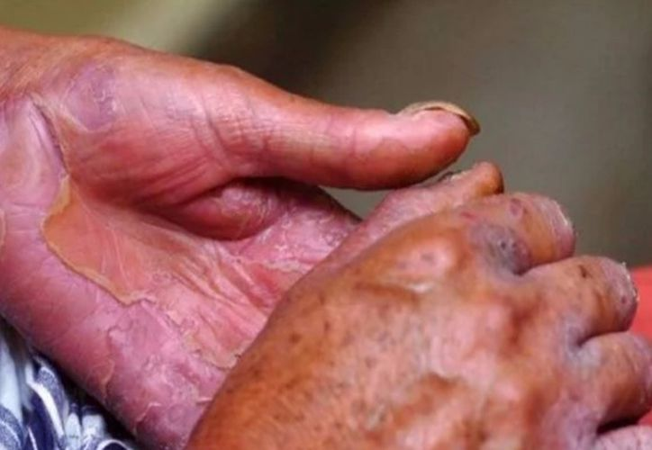 Secretaría de Salud reporta dos casos de lepra en el Estado. (Foto: Minsal)