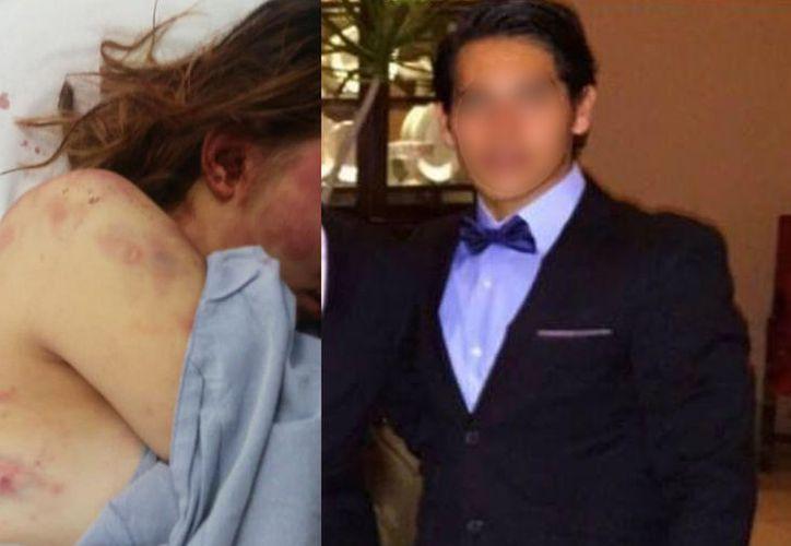 La mujer fue llevada a un hospital mientras el hombre fue detenido por la SSP.  (Redes sociales)