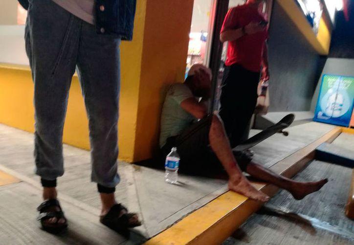 Tras recibir los primeros auxilios, el joven se retiró del lugar por su propio pie. (Redacción/SIPSE)