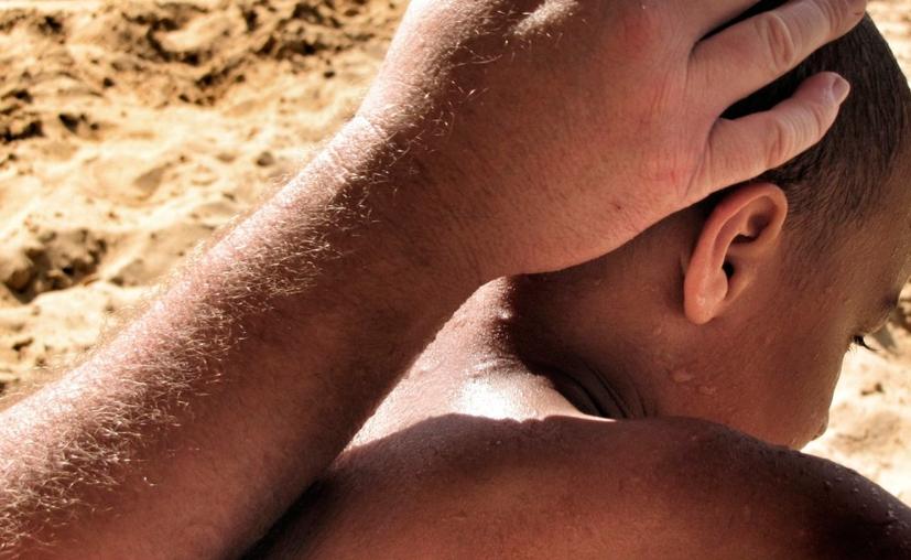 Un exceso de sol puede provocar problemas en las personas con la piel oscura, como la hiperpigmentación y el melasma. (Pxhere)