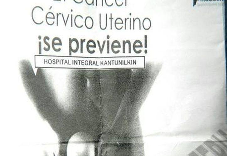 Exhortan a realizarse la prueba de papiloma humano. (Raúl Balam/SIPSE)