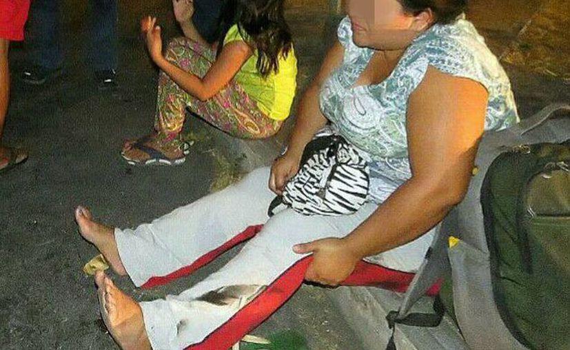 La mujer sufrió golpes luego de ser 'arrastrada' por el camión. (Milenio Novedades)