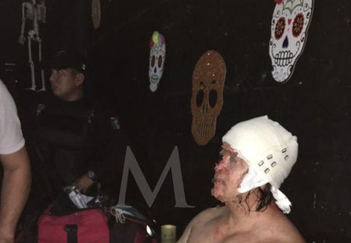 Ninguno de los agresores quiso ser hospitalizado, El bar fue clausurado.