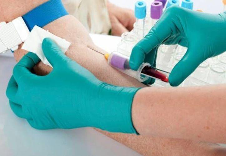 El nuevo test de sangre es mucho más sensible que el anterior para medir los niveles de la proteína troponina. (curiosidades.batanga.com)