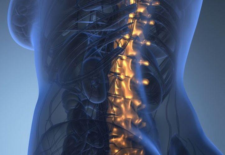 El problema de la espina bífida es cada vez es más común en Yucatán. (Foto: Milenio Novedades)