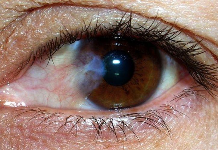 Recomiendan evitar el uso de gotas oftalmológicas, pues pueden contener esteroides. (Internet)