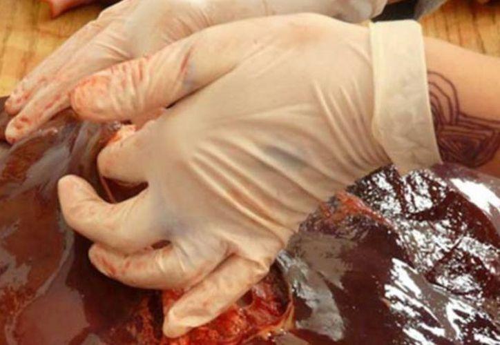 La contaminación de alimentos es una conducta tipificada como delito por el artículo 464 de la Ley General de Salud, el cual prevé una pena corporal de uno a nueve años de prisión. (Internet/Contexto)