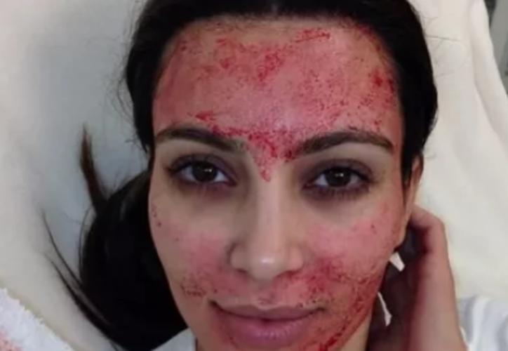 """Según el Departamento de Salud de Nuevo México, ambas clientas """"recibieron procedimientos relacionados con la inyección"""" (Foto: Instagram)"""