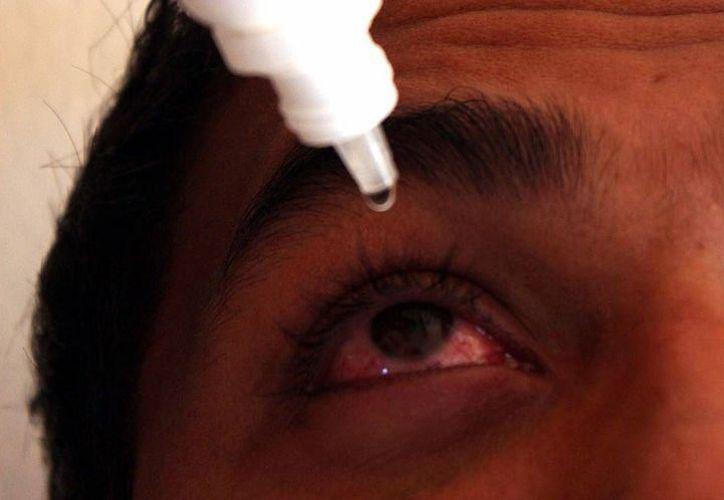 La conjuntivitis alcanzó su punto más álgido en la semana epidemiológica 40, con el registro de 21 mil 121 casos nuevos, entre el 1 y 7 de octubre. (SIPSE)