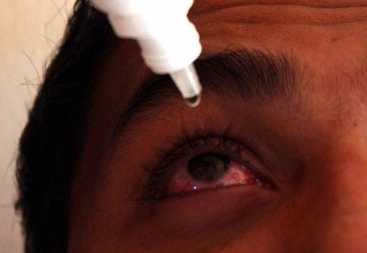 Cada 12 horas se ha reportado un caso de conjuntivitis en las últimas semanas. (Archivo/ SIPSE)