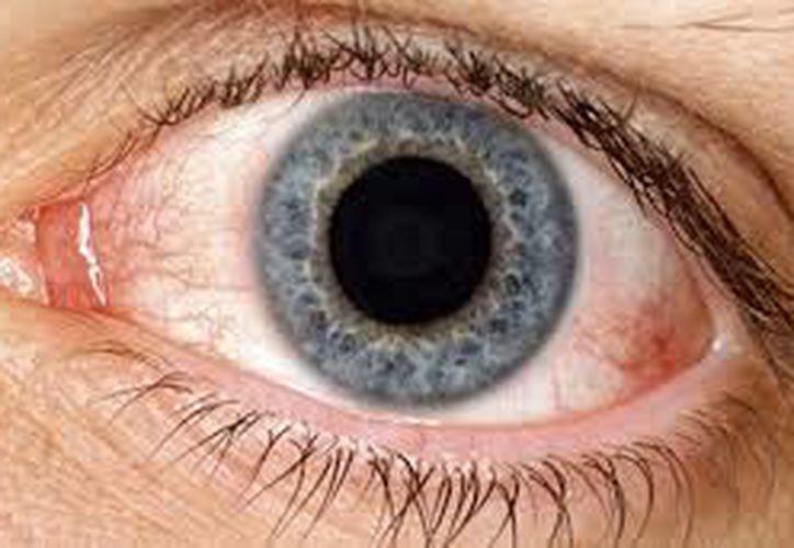 """Otro síntoma es la sensación de tener arenilla o algún otro objeto o material """"dentro"""" del ojo. (Internet)"""