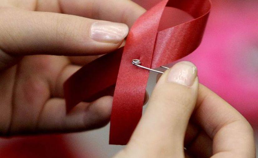 El VIH afecta a más de 34 millones de personas en el mundo. (pruebadeadnmexico.com)