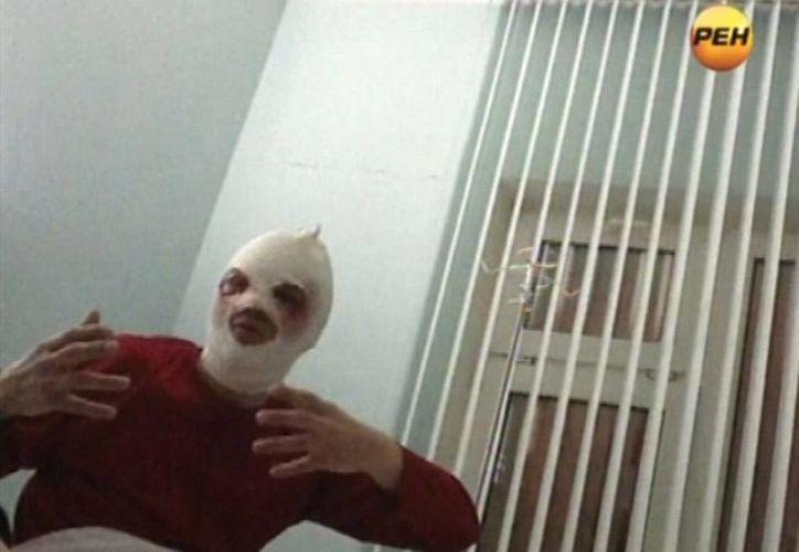 Imagen del Director del ballet Bolshoi, Sergei Filin, quien fue atacado con ácido en Rusia. En el caso del administrador del hospital en Iran, médicos informaron que no perderá la vista. (Archivo/Agencias)