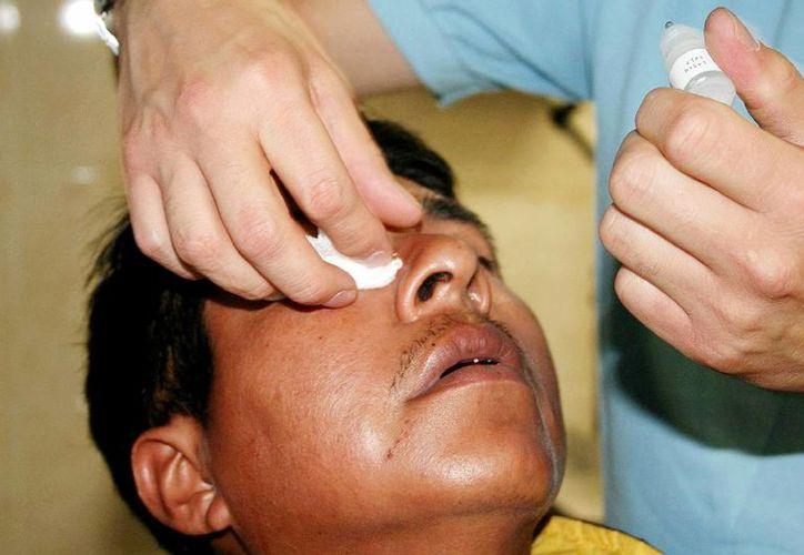 La conjuntivitis es una  enfermedad altamente contagiosa. (Milenio Novedades)