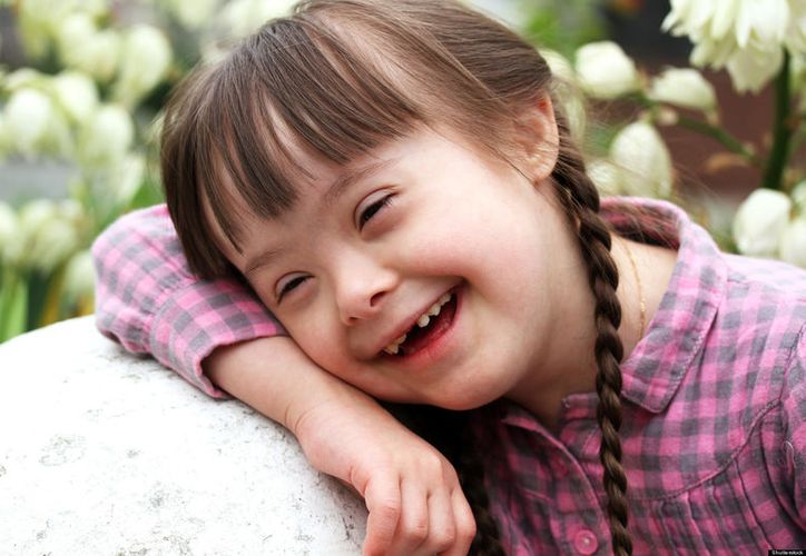 En el seguimiento médico a los menores con Síndrome de Down se les hacen estudios de Biometría Hemática. (Foto: Contexto/Internet)