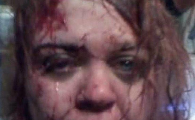 Sussan fue brutalmente golpeada por su esposo con una pistola. Su publicación en Facebook fue vista por un amigo, que llamó a la policía. (huffpost.com)