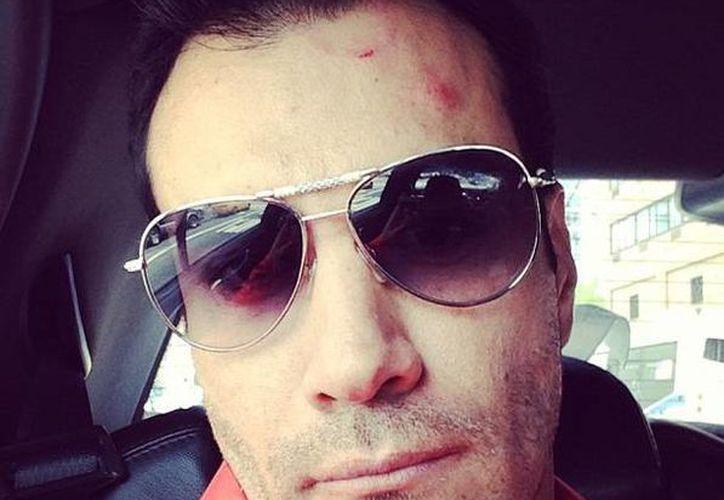 El propio actor publicó en redes sociales la foto donde se ve el golpe en la frente. (@davidzepeda1)
