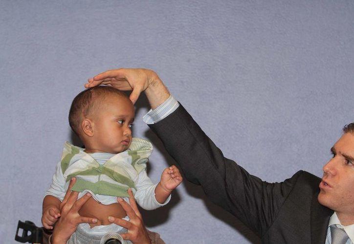 Uno de los especialistas del Hoispital General de México explica el procedimiento realizado al menor para corregir la craneosinostosis. (Foto Notimex)