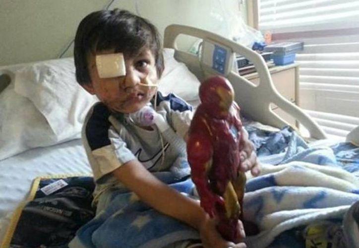 Kevin Vicente, de 4 años, se recupera del ataque de un perro el 20 de febrero que lo dejó con una cuenca ocular y la mandíbula fracturadas. (Agencias)