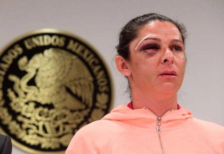 Ana Gabriela Guevara negó que el juicio pueda finalizar con la reparación del daño, pues continuará el proceso hasta las últimas consecuencias. (Archivo/Agencias)