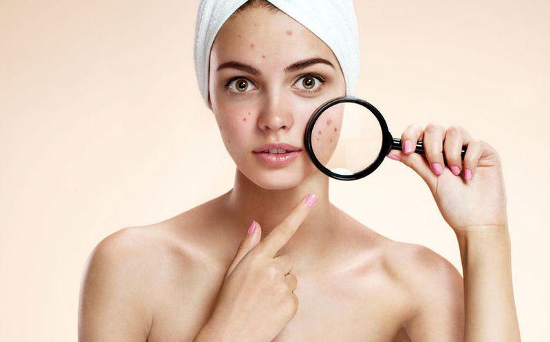 ¿Por qué aparece el acné?