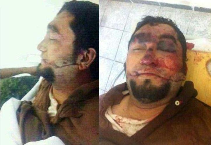 'El Chayo' fue abatido durante un enfrentamiento entre marinos y delincuentes en Michoacán. (Facebook/Valor Por Michoacán)
