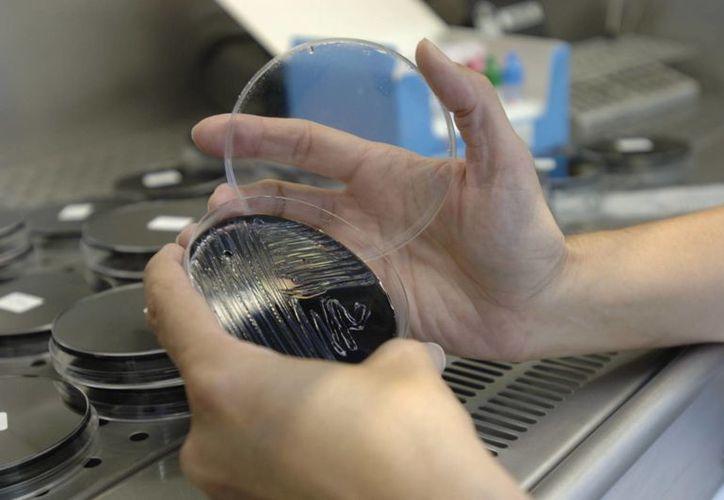 Una muestra es analizada en un laboratorio, en busca del foco de legionela. (EFE/Archivo)