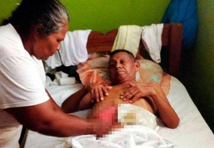 Carmela Mosqueda Guerra ayuda a su esposo Eulalio López, quien convalece tras una operación de emergencia para cerrarle una perforación en el intestino que le causaron médicos del hospital público de Balancán, Tabasco. (excelsior.com.mx)