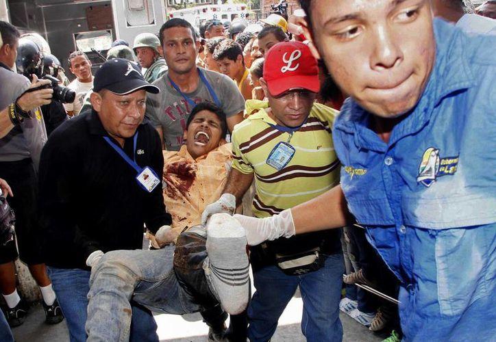 Traslado de uno de los reos al hospital. La mayoría resultaron lesionados por arma de fuego. (AP)