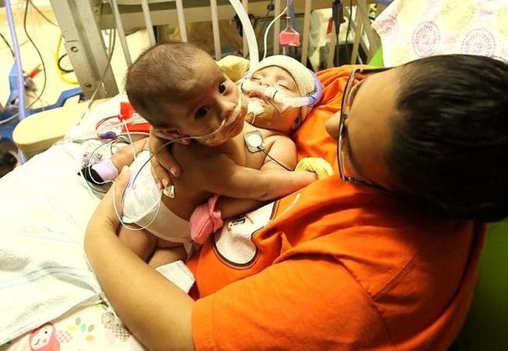 Las pequeñas resistieron las 26 horas que duró la intervención quirúrgica para separarlas. (AP)