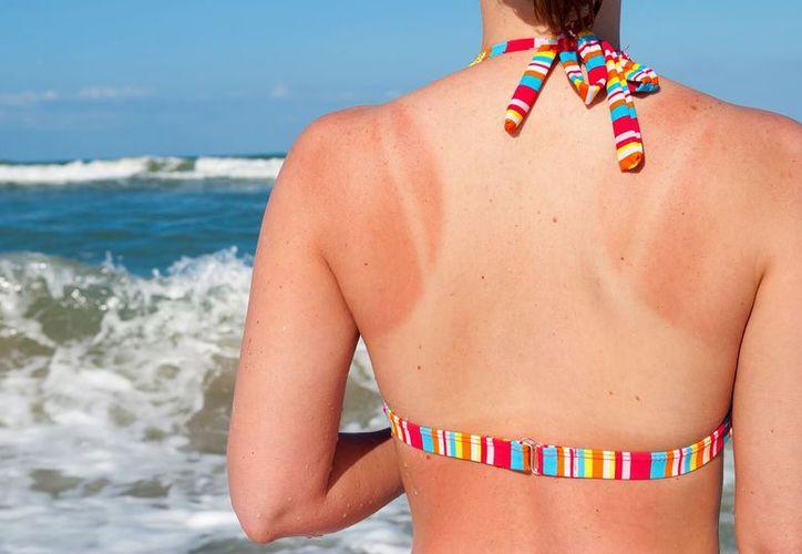 Si te preocupa la salud de tu piel, usa siempre bloqueador solar. (Contexto/Internet)