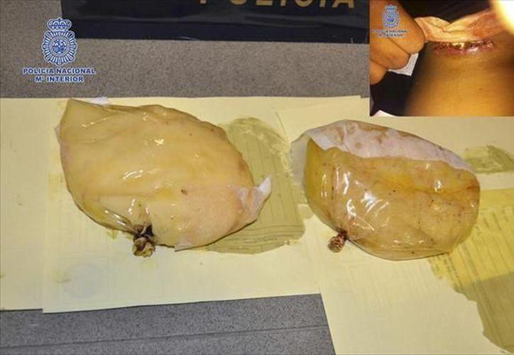No hay antecedente conocido en España del uso de implantes mamarios para el transporte de cocaína. (EFE)