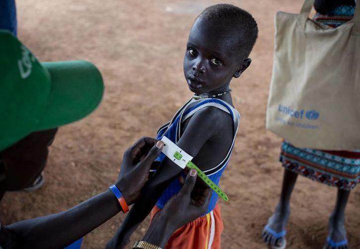 En esta foto tomada el jueves 20 de octubre de 2016 y publicada por Unicef, un niño es revisado por personal médico para su evaluación nutricional. Este día fue declarada la hambruna en el sur de Sudán, según un anuncio del gobierno y de tres agencias de la ONU. (Kate Holt / Unicef a través de AP)