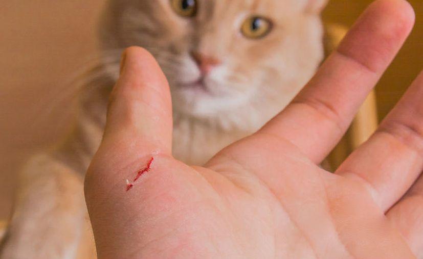 Arañazos de gato podrían causar disfunción eréctil temporal. (Contexto)