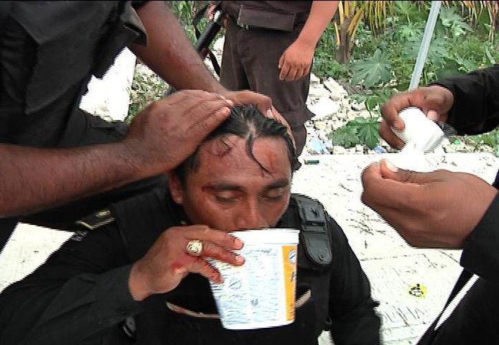 Uno de los policías lesionados. (Milenio Novedades)
