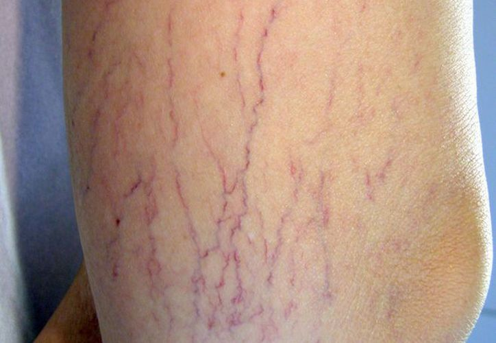 Varicure ayuda al tratamiento de las várices, que es un problema de mujeres y de hombres. (altaestetica.com)