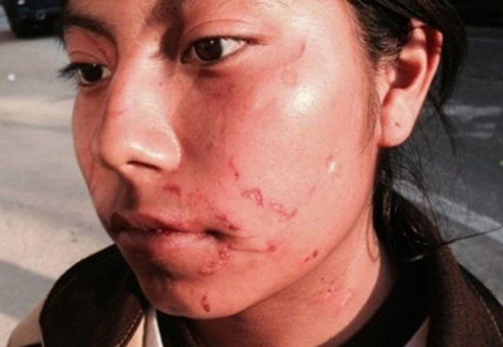 Angelina aún tiene costras en su cara por las agresiones cometidas por sus compañeros de la Secundaria Técnica Número 42 en Tepito (diariodemexicousa.com)
