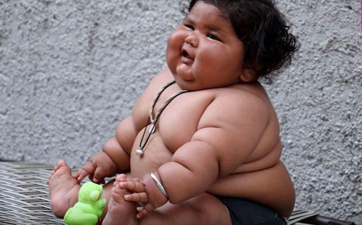 El sobrepeso de la pequeña dificulta los análisis, por lo que urge llevarla con un especialista. (Foto: Redacción)