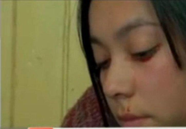 Yaritza Oliva, de 20 años, no sólo 'sufre' por las lágrimas de sangre, sino también por una rara enfermedad en las articulaciones. (SIPSE/captura de pantalla)