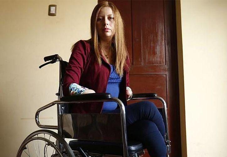Shirley Meléndez Tuesta, quien perdió las manos y pies en un hospital de Perú, afirma que 'si hubieran actuado de manera correcta no estaría así ahora'. (excelsior.com)