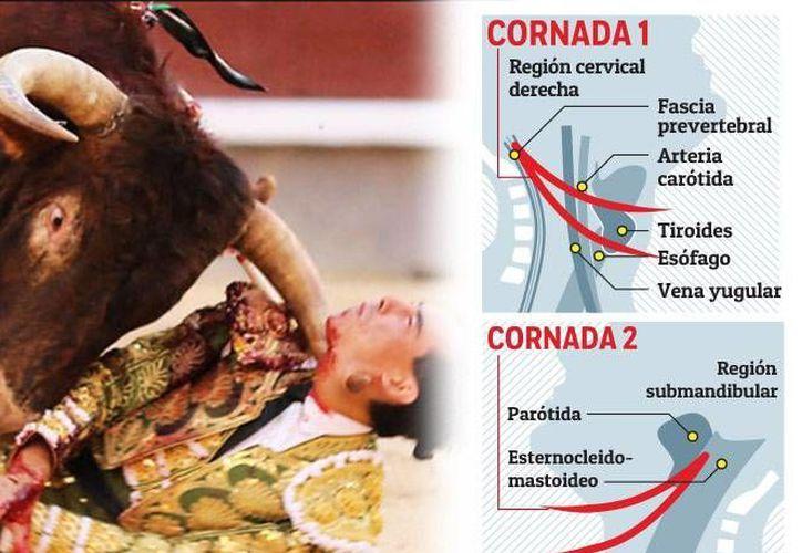 La salud del torero español es satisfactoria. Tiene movimiento en piernas y manos (las-ventas.com)